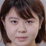 頬の脂肪(メーラーファット)が脂肪吸引で劇的変化-症例写真あり