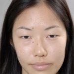 春休みに多い美容外科手術 (画像あり)