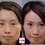 二重まぶたの手術による目元の印象の変化 (画像あり)