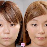 隆鼻術はプロテーゼが一番 (画像あり)