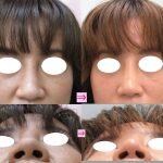 団子鼻を改善したい (画像あり)