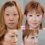 隆鼻術と整鼻術の複合手術 (画像あり)