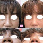 団子鼻、鼻尖縮小と小鼻縮小、どちらが効果的? (画像あり)