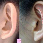 立ち耳の手術と傷跡 (画像あり)