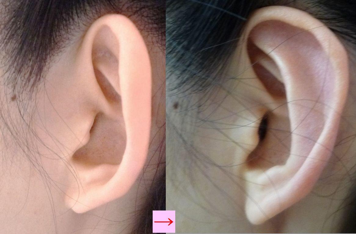 ニキビ 耳たぶ