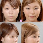 隆鼻術、I型プロテーゼとL型プロテーゼの違い (画像あり)
