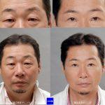 目の下の膨らみ、切らない目の下の脱脂術と目の下のタルミ取りの違い (画像あり)
