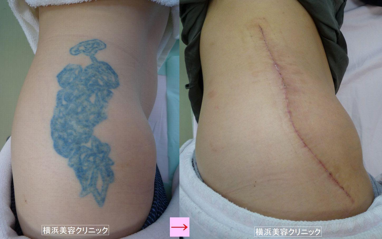 刺青を消したい、切除法とレーザー治療の違い (画像あり)