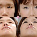 隆鼻術+小鼻縮小 (画像あり)