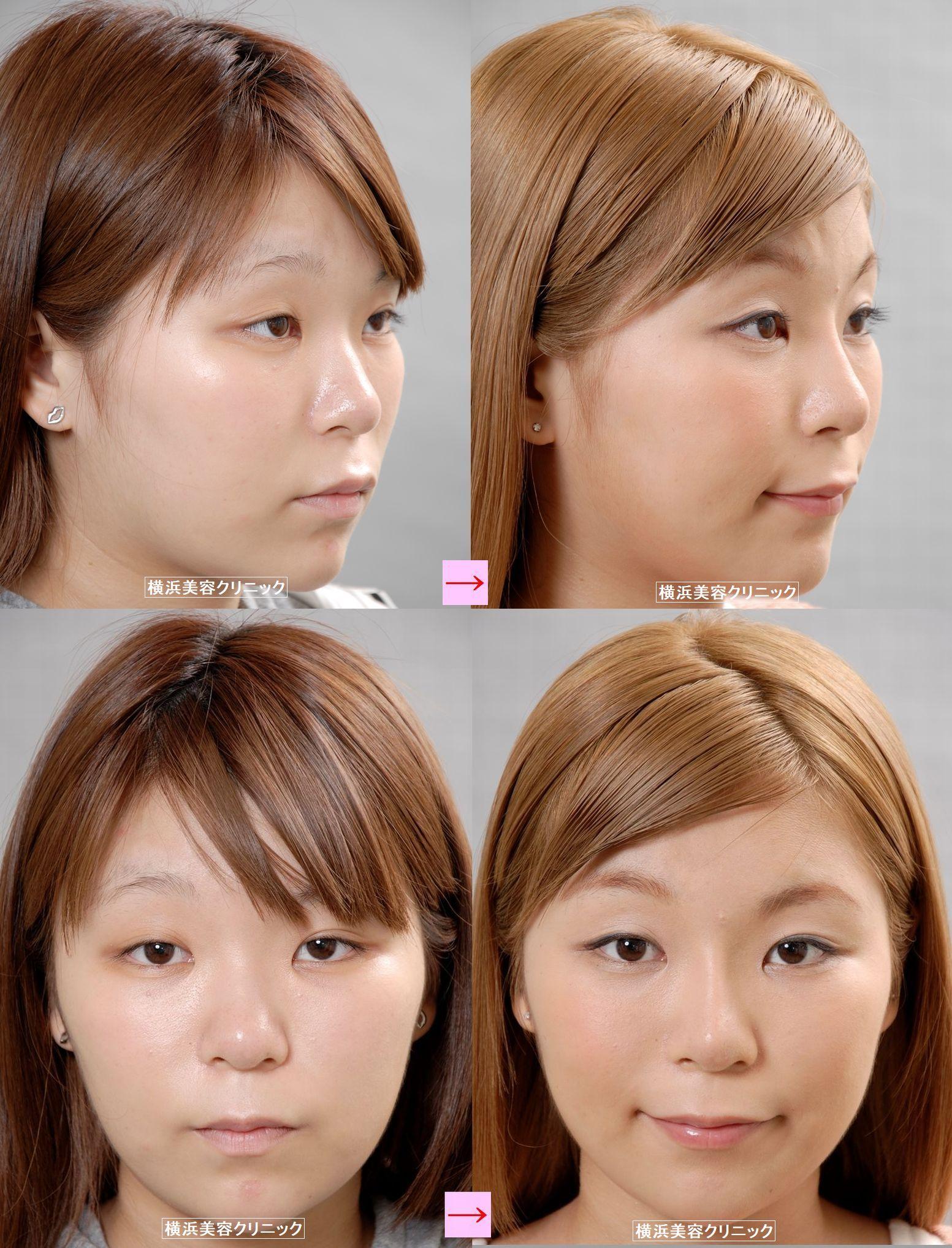 ゴールデンウィークは美容外科施術を受ける絶好のチャンス (画像あり)