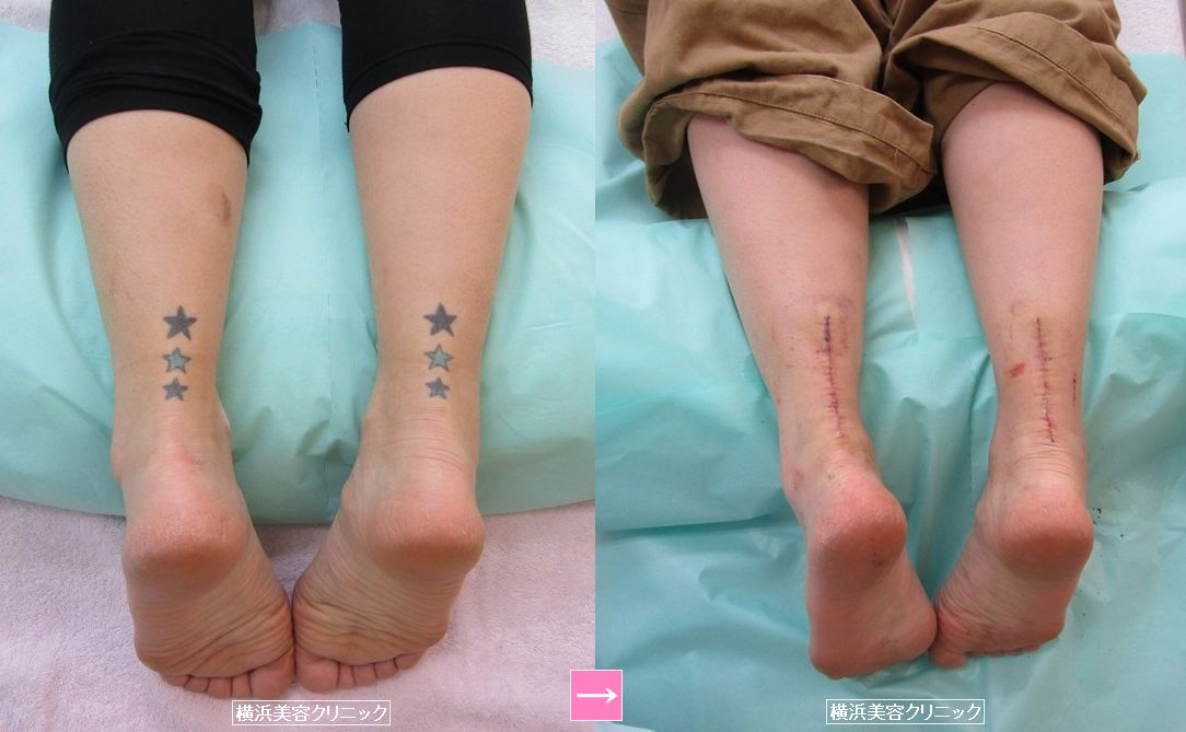 刺青除去(ふくらはぎ) (画像あり)