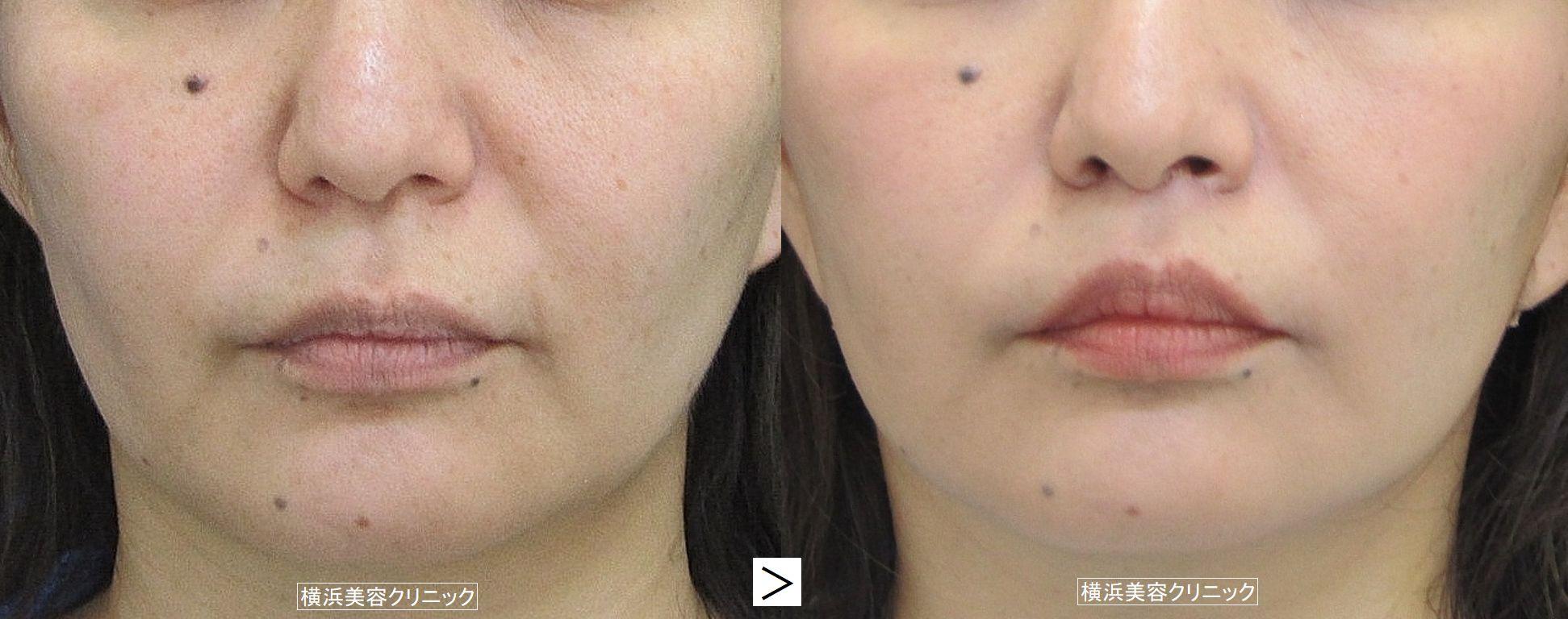 人中短縮術(鼻下短縮術、リップリフト)