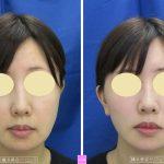 20代女性のフェイスリフト(切開リフト) 過激な骨削りや脂肪吸引に注意 (画像あり)