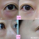 切らない目の下のタルミ取りは何歳まで可能か (画像あり)