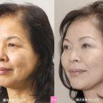 時期の違いによる美容外科施術 (画像あり)