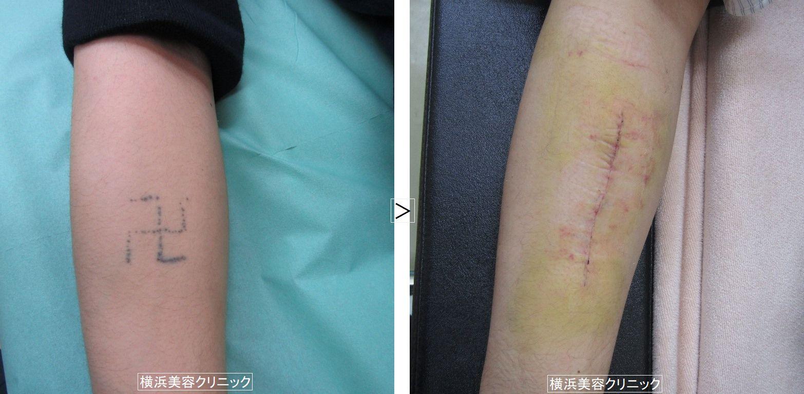 刺青除去 前腕 (画像あり)