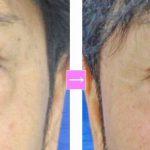 目の下の弛みと膨らみ (画像あり)