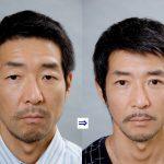 男性に多い美容外科施術 2 (画像あり)