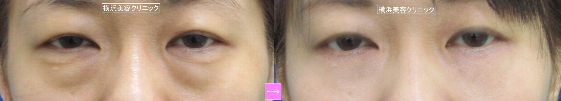 目の下のタルミ取り (画像あり)
