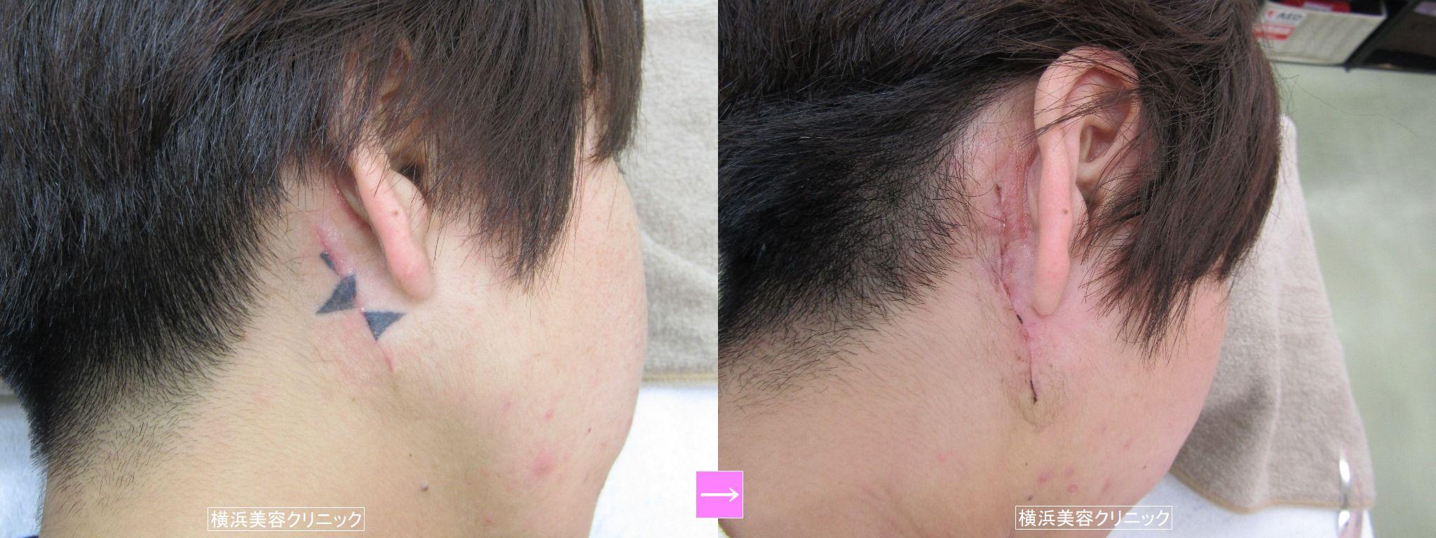 刺青除去 耳の後ろ (画像あり)