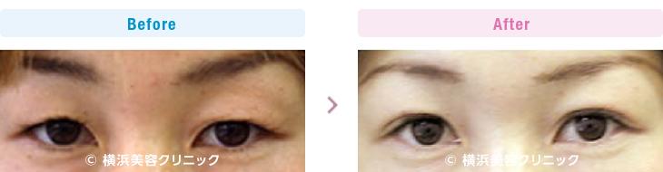 【40代女性】 上まぶたにタルミが多少ある場合は、弛んだ皮膚を上方に引き上げて固定する切らないアイリフトが効果的