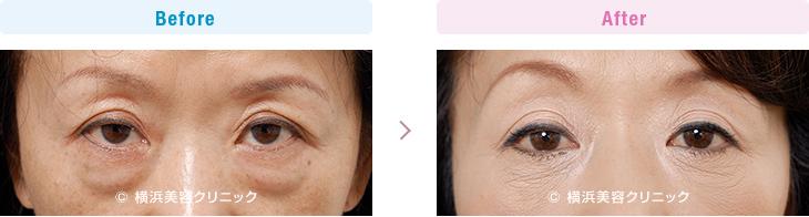 【50代女性】目の下のタルミの要素が多い場合は、タルミ取りの手術の方が有効です。【横浜美容クリニック】