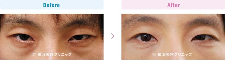 【30代男性】男性の目の下の膨らみは印象を悪くするので、切らない目の下の脱脂術は有効です。【横浜美容クリニック】