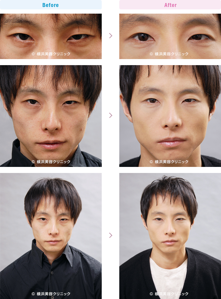 男性美容 膨らみは少ないですが、クマっぽい印象が強い方です。(切らない目の下のくま・ふくらみ・脂肪取り)【横浜美容クリニック】