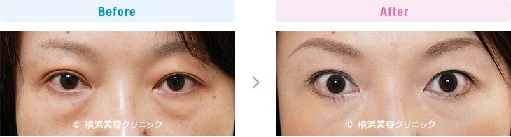 【30代女性】目の下の大きなふくらみも、切らない目の下の脂肪取り(くま取り)で改善します。【横浜美容クリニック】