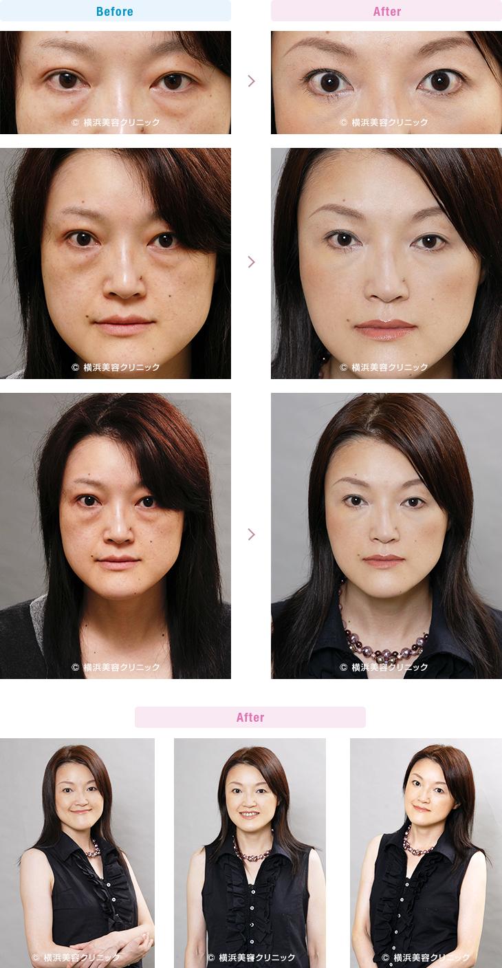 切らない目の下のくま・ふくらみ・脂肪取り 【30代女性】目の下の大きなふくらみも、切らない目の下の脂肪取り(くま取り)で改善します。【横浜美容クリニック】