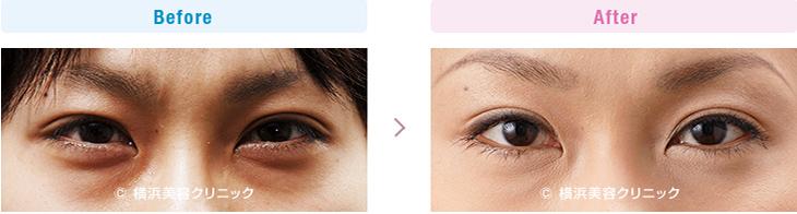 【20代女性】色素性のくまと膨らみによる影くまが混在しても、膨らみが減ると目立たなくなります。【横浜美容クリニック】