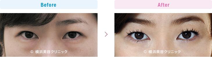 【30代女性】切らない目の下の脂肪取り(くま取り)で目の下の膨らみが減ることにより、疲れた印象が改善します。【横浜美容クリニック】