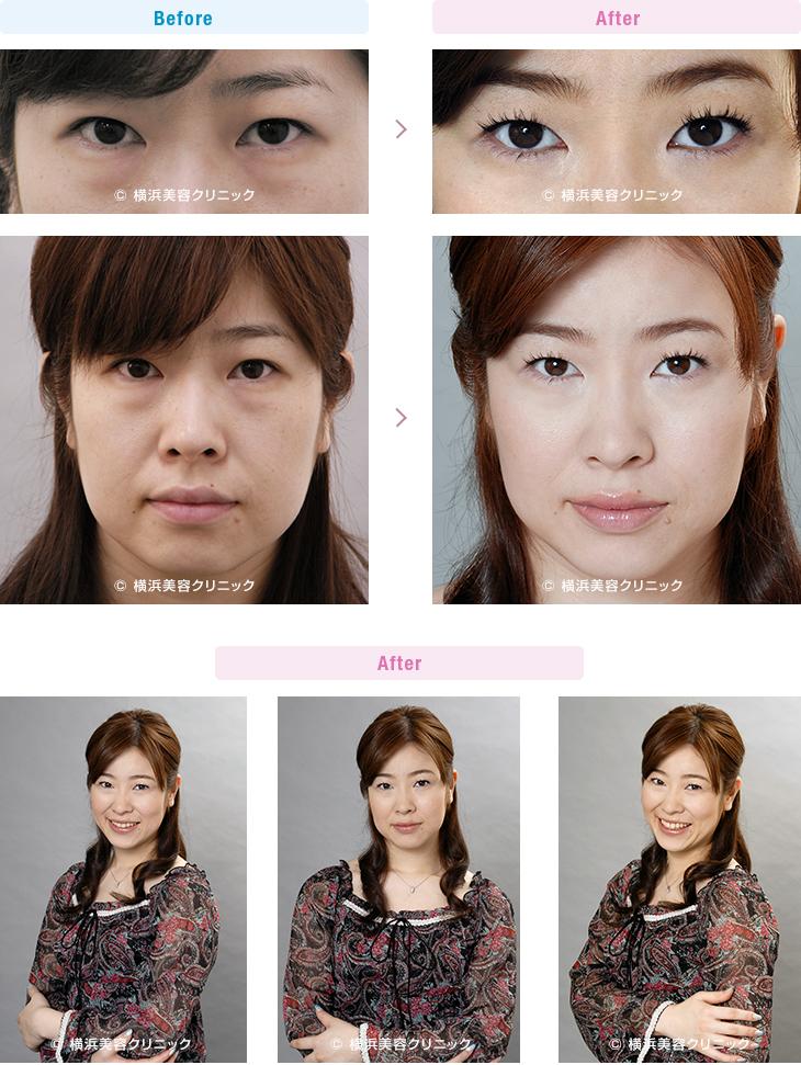切らない目の下のくま・ふくらみ・脂肪取り 【30代女性】切らない目の下の脂肪取り(くま取り)で目の下の膨らみが減ることにより、疲れた印象が改善します。【横浜美容クリニック】