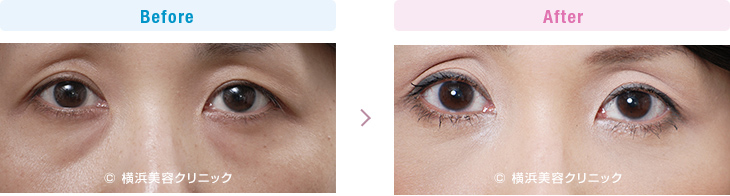 【30代女性】目の下の膨らみが減ることにより、クマっぽい目元の印象が改善します。