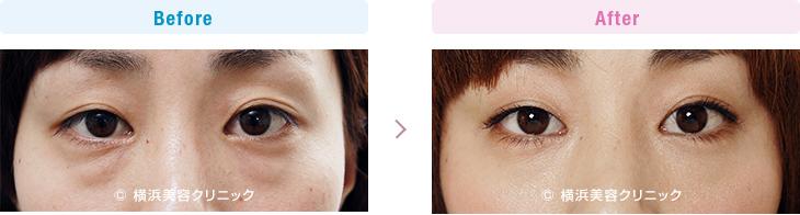 【20代女性】目の下の膨らみが減ることにより、クマっぽい印象が改善します。