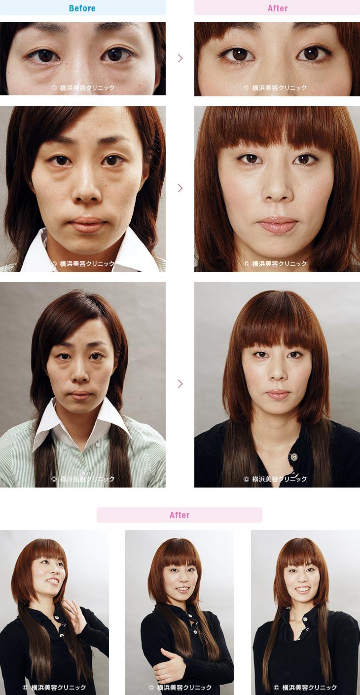 切らない目の下のくま・ふくらみ・脂肪取り 【20代女性】目の下の膨らみが減ることにより、クマっぽい印象が改善します。【横浜美容クリニック】
