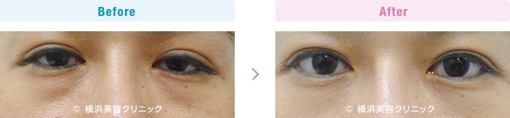 【40代女性】クマっぽい印象に見える目の下の膨らみは、切らない目の下の脂肪取り(くま取り)で改善【横浜美容クリニック】