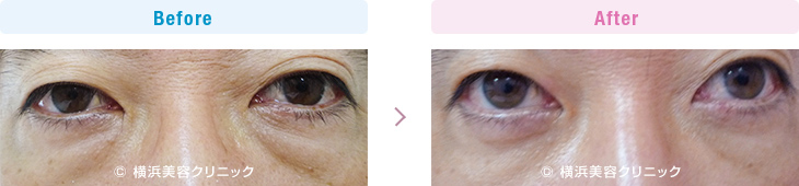 【40代男性】男性も目の下の膨らみが減ることにより、クマっぽい印象が改善します。【横浜美容クリニック】