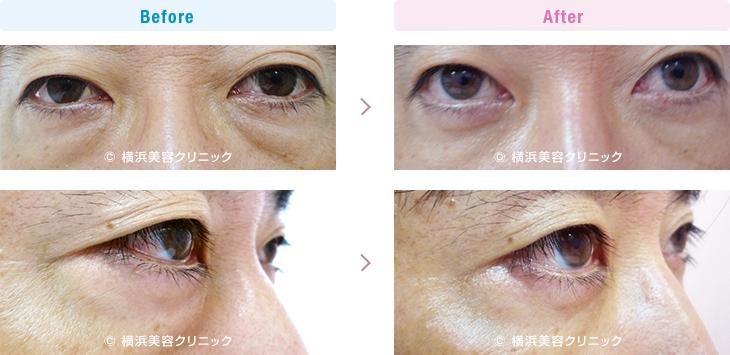 切らない目の下のくま・ふくらみ・脂肪取り 【40代男性】男性も目の下の膨らみが減ることにより、クマっぽい印象が改善します。【横浜美容クリニック】