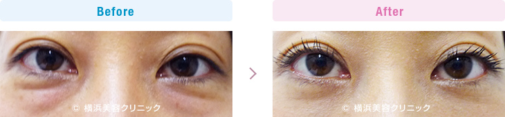 【40代女性】目の下の膨らみが減ることにより、疲れた印象が改善します。【横浜美容クリニック】