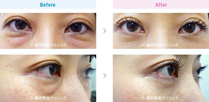 切らない目の下のくま・ふくらみ・脂肪取り 【40代女性】目の下の膨らみが減ることにより、疲れた印象が改善します。【横浜美容クリニック】