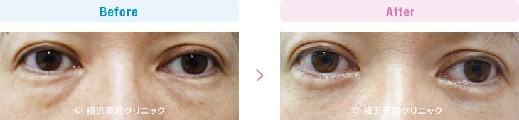 【30代女性】目の下の膨らみが減ることにより、目立たなかった涙袋がハッキリしました。【横浜美容クリニック】