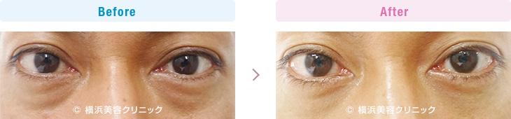 この方は色素性のクマと眼窩脂肪による膨らみが混在しています。(切らない目の下のくま・ふくらみ・脂肪取り)