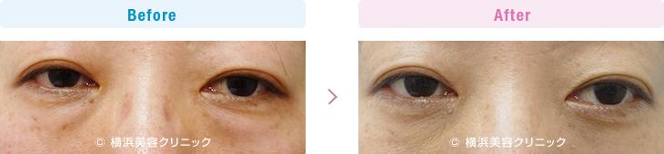 【40代女性】目の下の膨らみが減ることにより、疲れた印象の老け顔が改善します。【横浜美容クリニック】