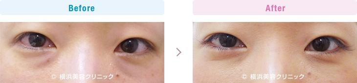 【30代女性】目の下の膨らみが減ることにより、クマっぽい印象が改善します。【横浜美容クリニック】
