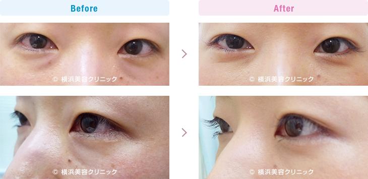 切らない目の下のくま・ふくらみ・脂肪取り 【30代女性】目の下の膨らみが減ることにより、クマっぽい印象が改善します。【横浜美容クリニック】