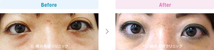 切らない目の下のくま・ふくらみ・脂肪取り 【20代女性】くまが気になる方には、切らない目の下のくま取り(脱脂術)が有効です。【横浜美容クリニック】