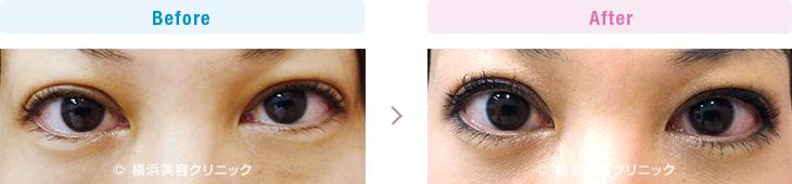 【20代女性】目の下の膨らみが減ることにより、クマっぽい印象が改善します。【横浜美容クリニック】