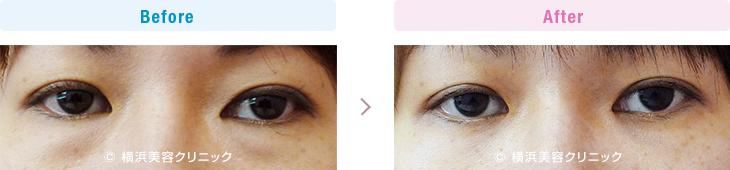 切らない目の下のくま・ふくらみ・脂肪取り 【30代女性】切らない目の下の脂肪取り(くま取り)で目の下の膨らみが減ることにより、目の下のクマっぽい印象が改善します。【横浜美容クリニック】