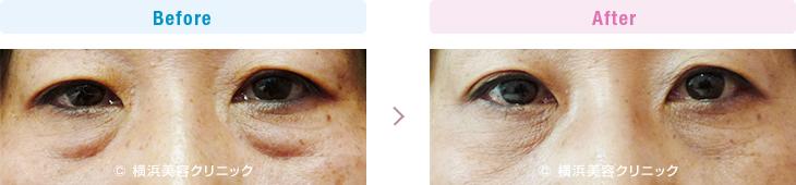 切らない目の下のくま・ふくらみ・脂肪取り 【50代女性】50代以降の年代の場合、弛みの要素の方が大きいので、タルミ取りの手術が適応になります。【横浜美容クリニック】
